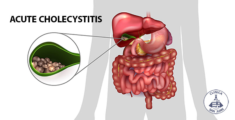 acute cholecystitis Acute cholecystitis acute inflammation of the gallbladder clinical finding right upper quadrant pain, variable severity, sudden onset, rigidity and rebound tenderness with peritonitis, nausea, vomiting, constipation, fever, slow pulse, murphy sign spontaneous remission is not uncommon.