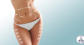 What is Liposculpture?